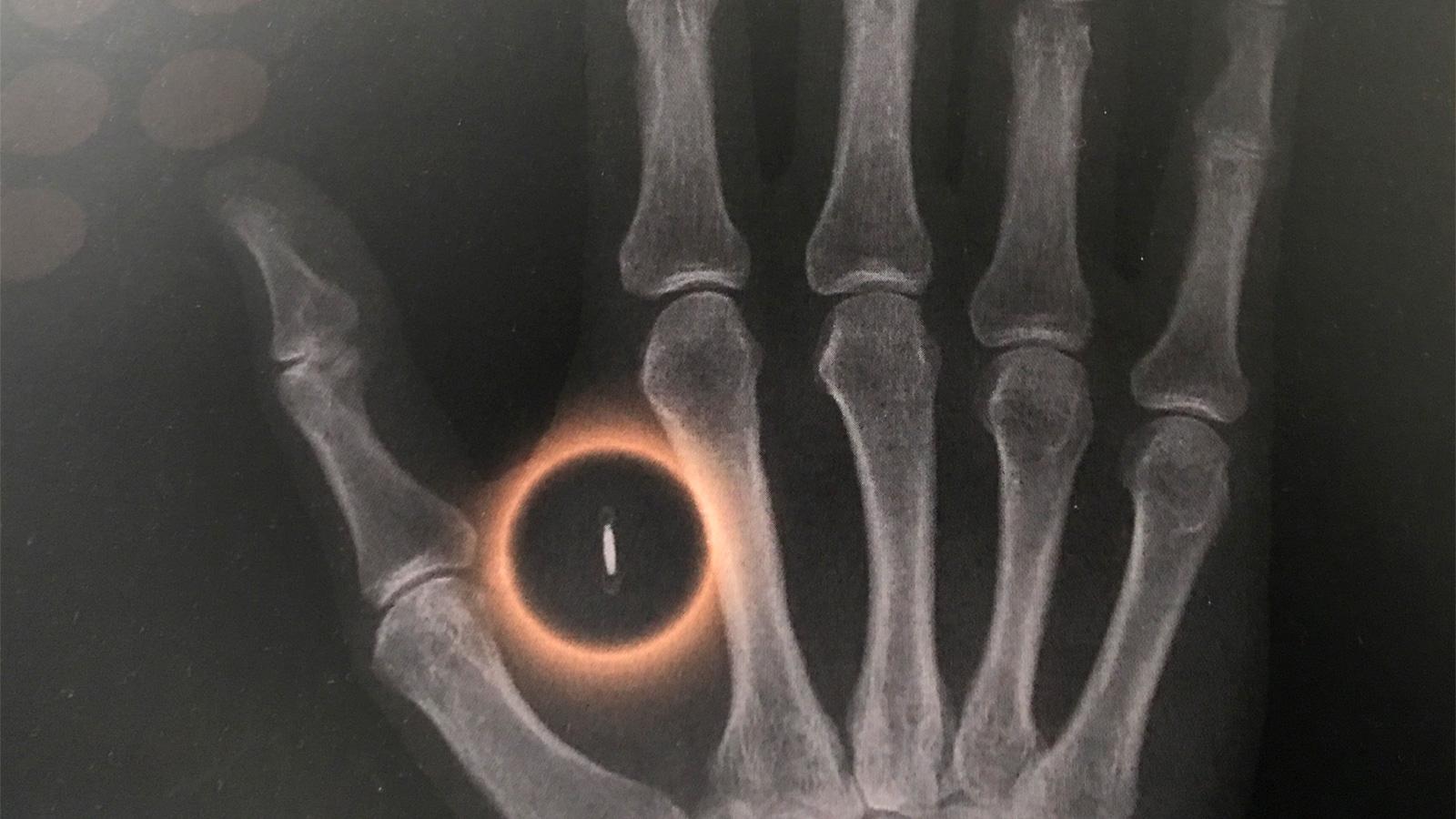 Röntgenbild eines Chipimplantats