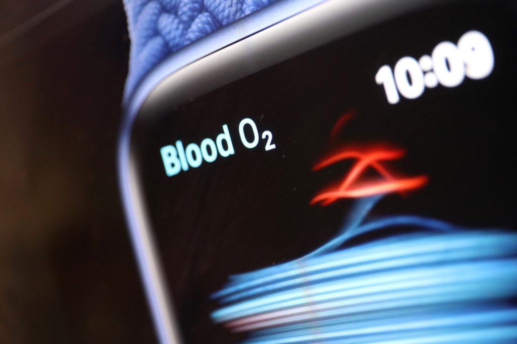Apple Watch Series 6: Kann auch Sauerstoffgehalt messen; Rechte: WDR/Schieb