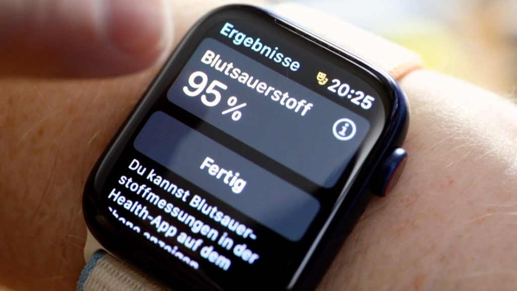 Die Apple Watch 6 kann jetzt auch den Sauerstoffgehalt im Blut ermitteln; Rechte: WDR/Schieb